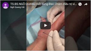 Phương pháp đao châm điều trị viên gân gấp ngón tay